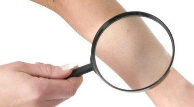 Qué es la dermatopatofobia